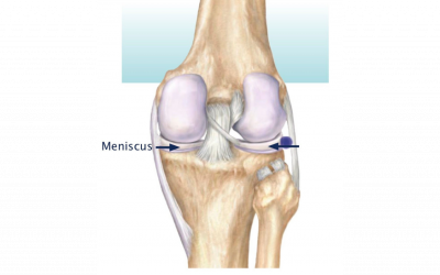 Meniscus Tear: What Is It and When Do I Need To Worry?
