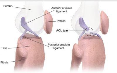 ACL Tears: The Basics