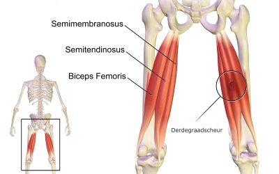 Hamstrings Injury & Breakdown